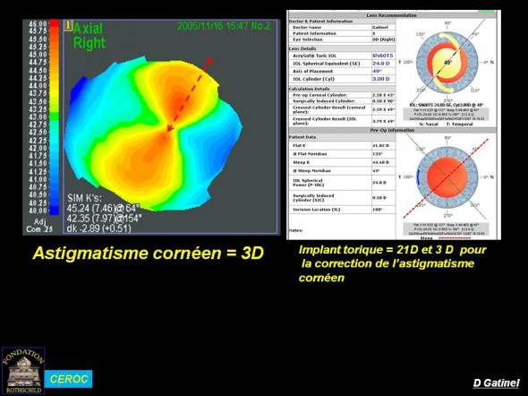 Astigmatisme cornéen calcul implant torique