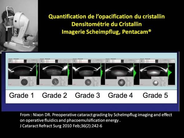 Densitométrie du cristallin