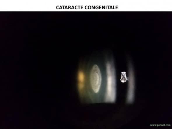 cataracte nucléaire