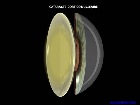 cataracte cortico nucleaire schema