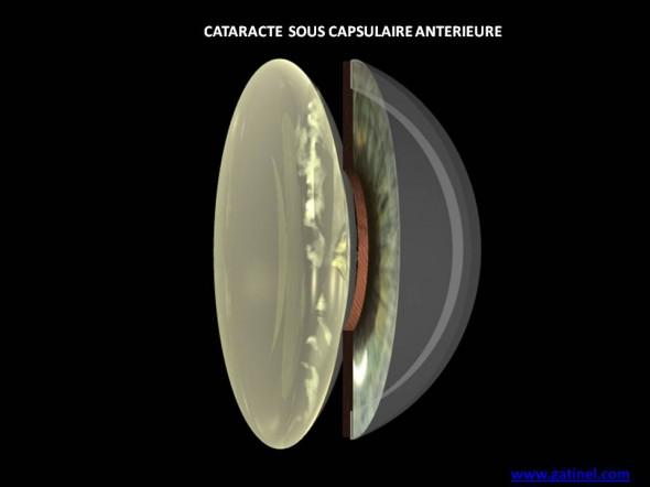 cataracte sous capsulaire antérieure schéma