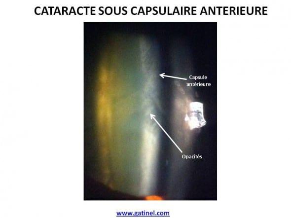 cataracte sous capsulaire antérieure photo