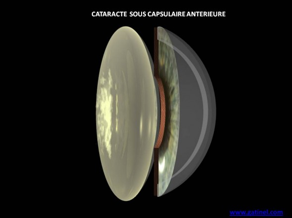 cataracte sous capsulaire posterieure schéma