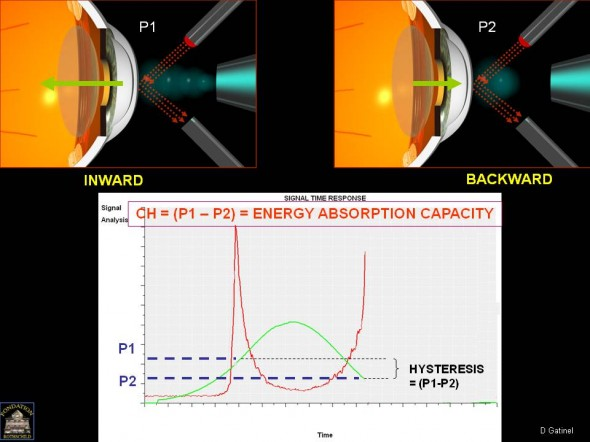 ora corneal hysteresis