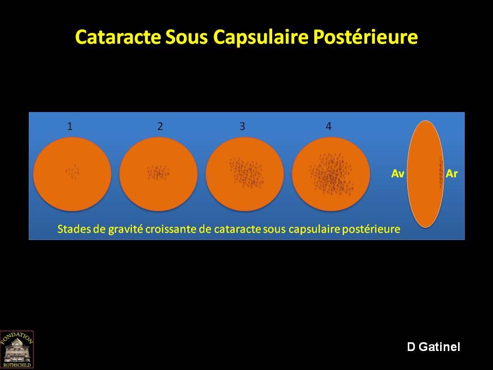 Qu'est-ce qu'une cataracte sous capsulaire? - Docteur