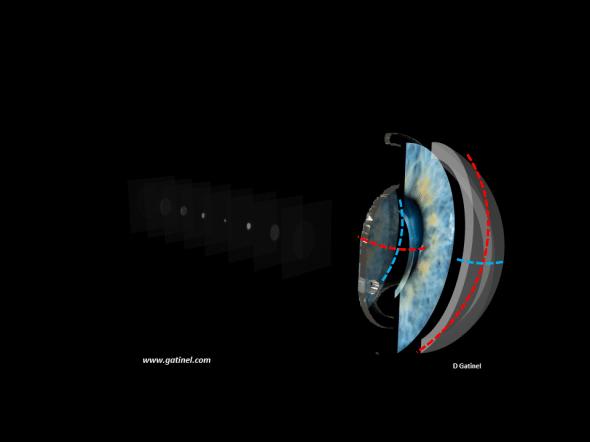 implant torique pour la correction de l'astigmatisme cornéen
