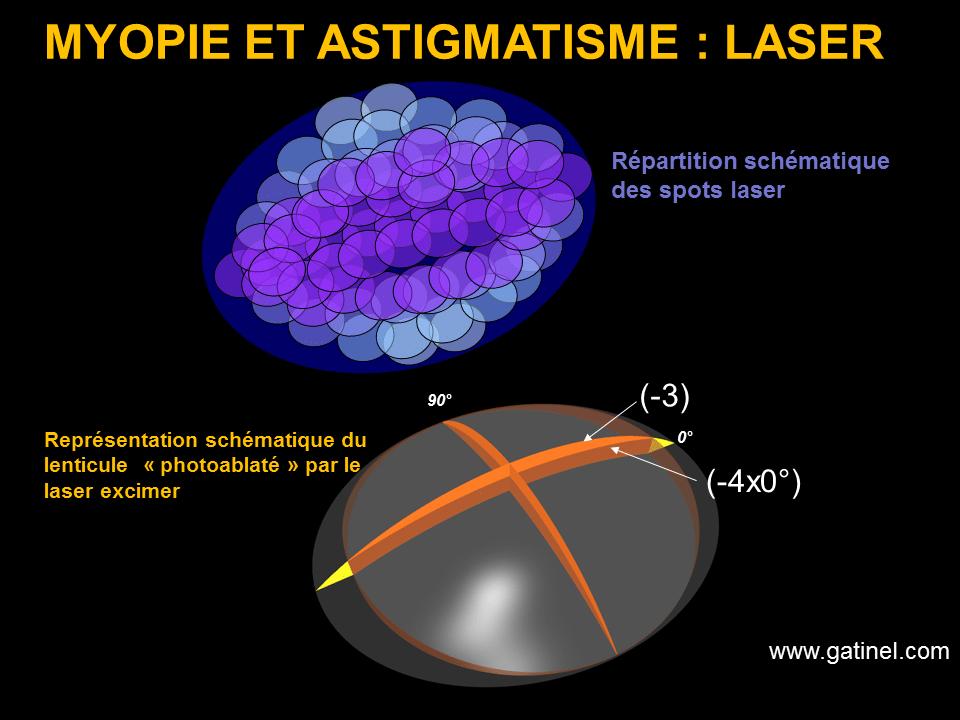 Différence Entre la Myopie et l'Astigmatisme