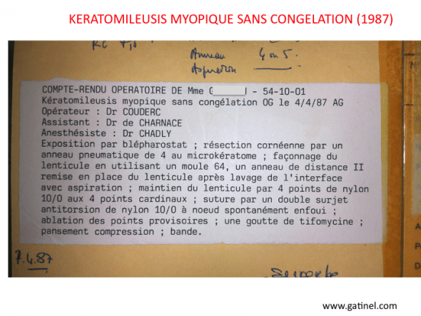 Proceedings of a myopic intervention of Keratomileusis without freezing, carried out by Dr. Couderc in the Rothschild Foundation in 1987.