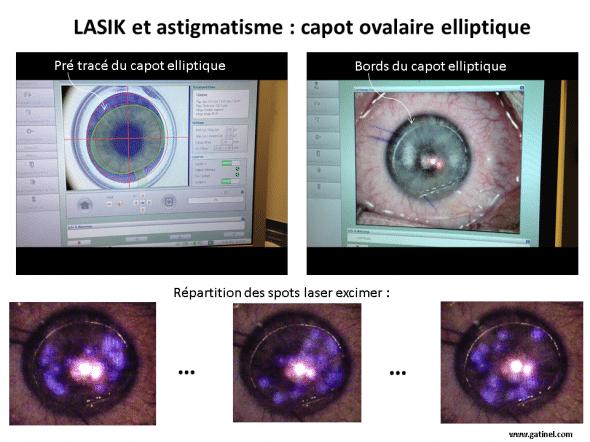 capot ovalaire ou elliptique pour la correction en LASIK de l'astigmatisme