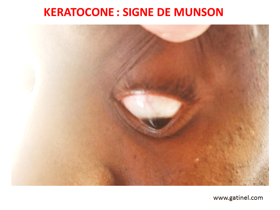 keratoconus blindness