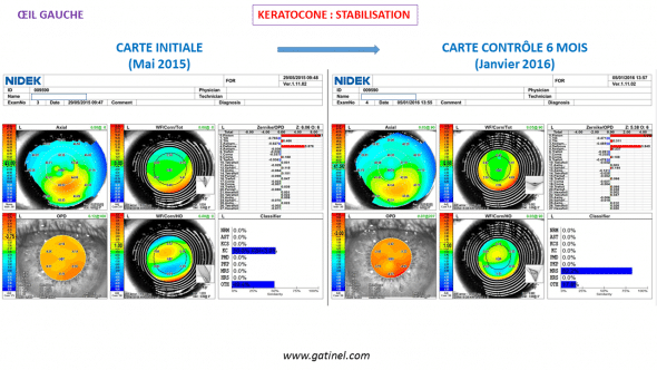 Absence de progression du kératocône de l'oeil droit : comparaison de cartes topographiques (OPDscan III)