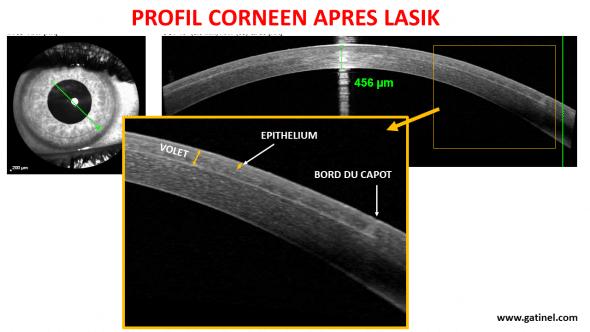 LASIK profil cornéen OCT haute résolution