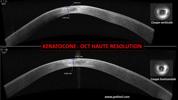 OCT haute résolution kératocone, epithélium vs stroma