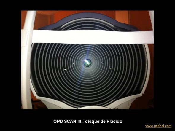 Placido OPD SCAN III