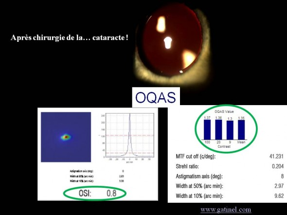 après chirurgie de la cataracte oqas OSI