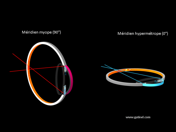 changes in vergence Meridian vertical and horizontal astigmatic eye