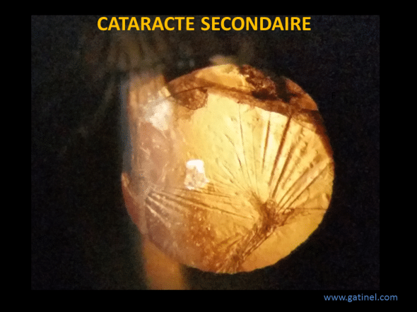 cataracte secondaire