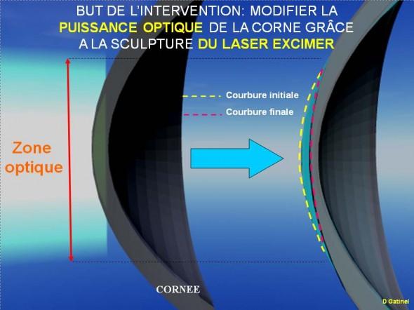 Chirurgie au laser de la cornée