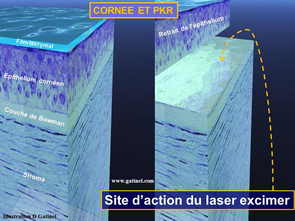 948cb67d80f177 La PKR (technique laser de surface) - Docteur Damien Gatinel