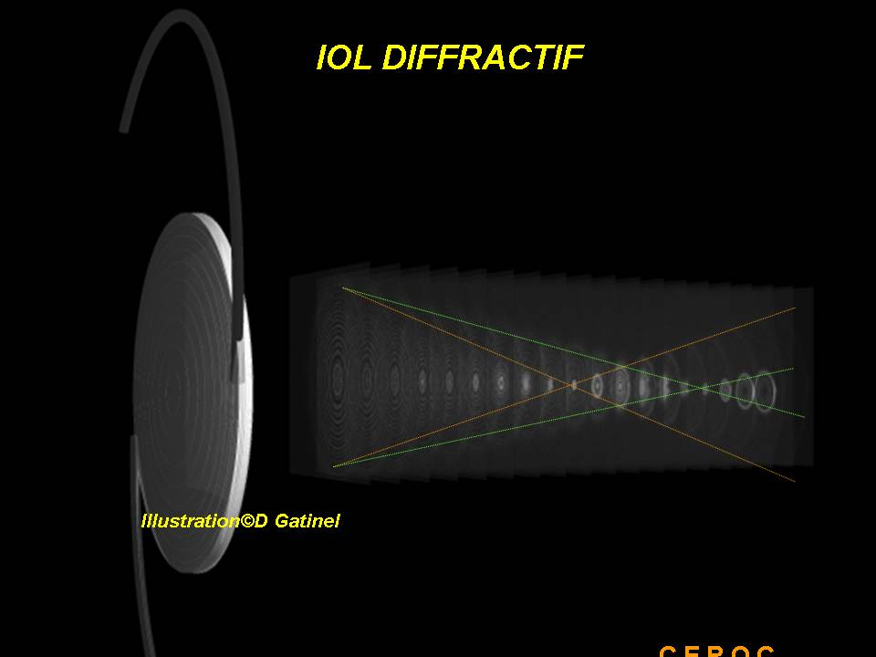 0c6014210f61f8 Homes of a Diffractive bifocal implant: note the circle of dissemination  between homes close (red) and far (green).