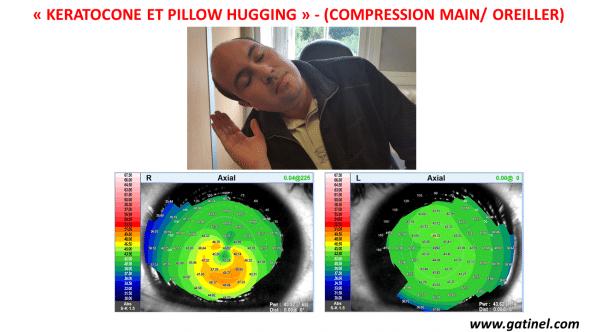 pillow hugging