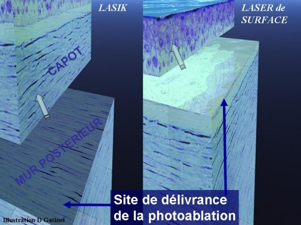 difference lasik pkr site de photoablation