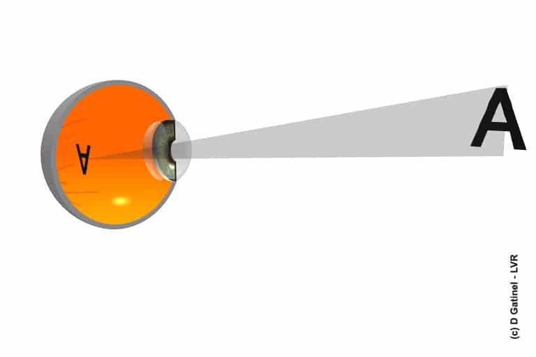 miopie cu grade stațiune pentru vedere
