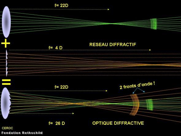 reseau diffractif implant
