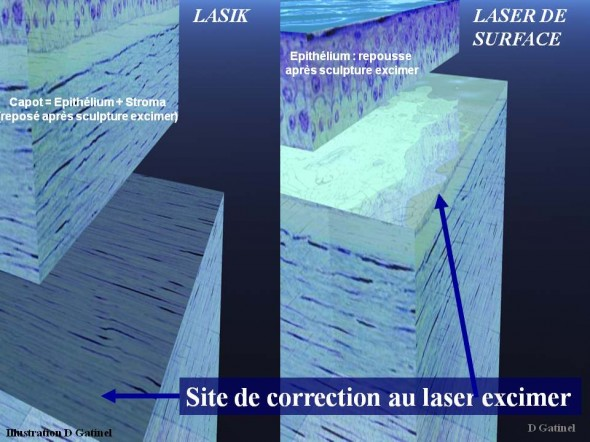 Laser ou lasik site