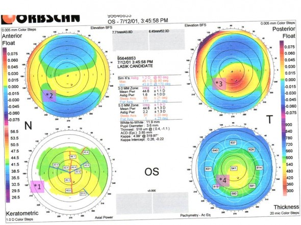 introduced keratoconus subclinical topography