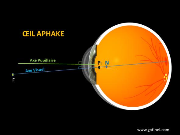 axe pupillaire axe visuel kappa aphake