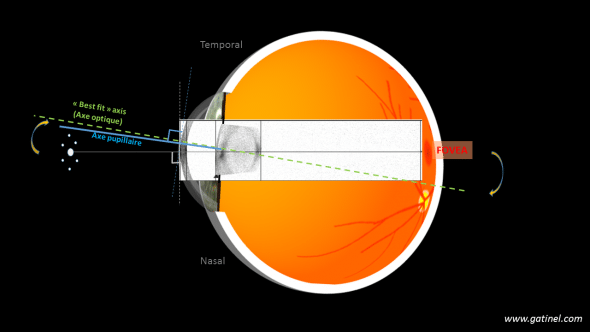 angle kappa vertex biometrie fixation