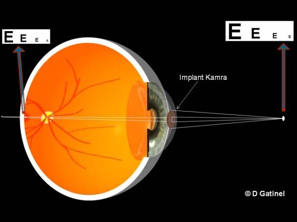 Implant Kamra inséré