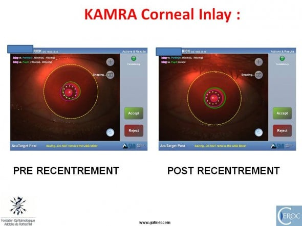 KAMRA inlay recentrement