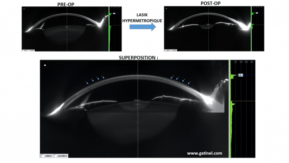 Hypermetropique before and after LASIK corneal profile