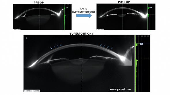 Profil cornéen avant et après LASIK hypermétropique