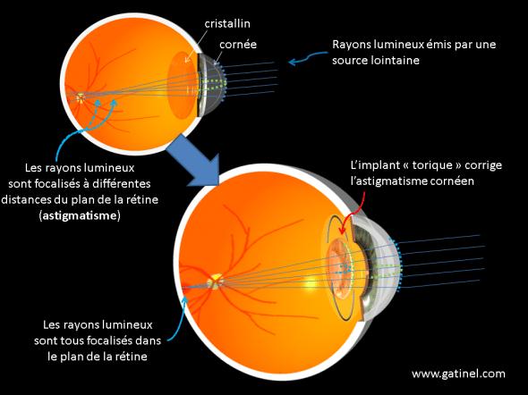 chirurgie de l'astigmatisme par un implant torique  principes et représentation
