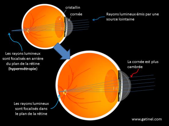 principes de la chirurgie de l'hypermétropie sur la cornée au laser