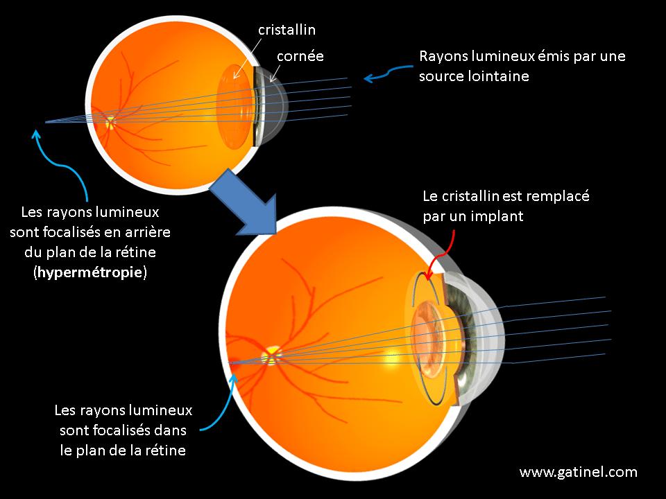 chirurgie de l  hypermétropie principes de la correction par implant 984649e619c1