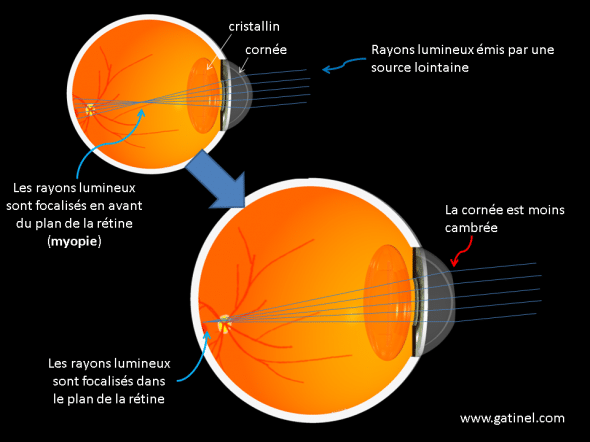 principles of the bischofsweihe myopia on the cornea laser
