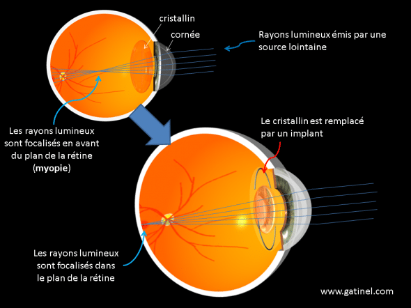 surgery for nearsightedness principles of the replacement of the lens by an implant