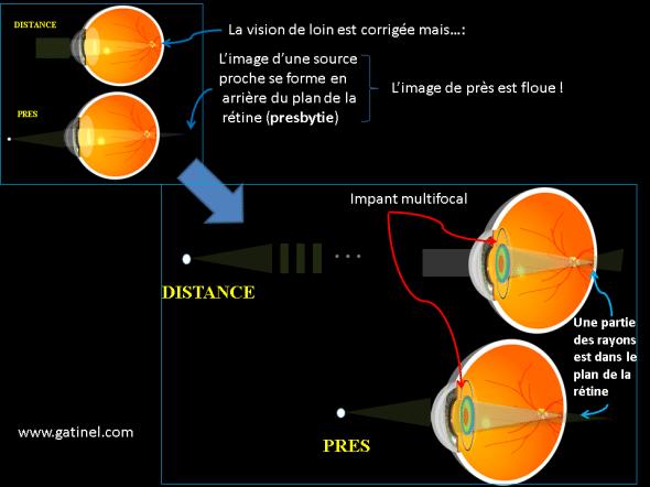 chirurgie de la presbytie par pose d'un implant multifocal en remplacement du cristallin
