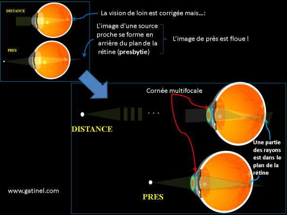 chirurgie de la presbytie sur la cornée  presbylasik et cornée multifocale