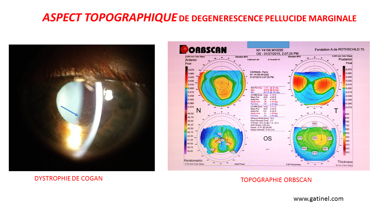 What did the pellucid marginal degeneration of the cornea? -Doctor