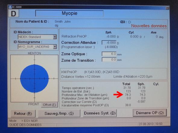 laser Nidek EC5000 ablation myopie 6 dioptries