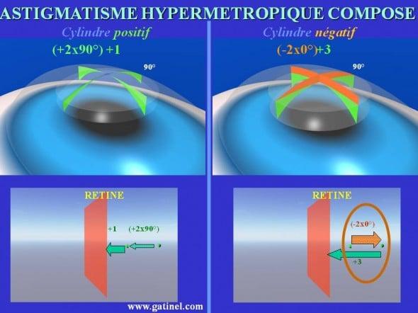 Astigmatisme hypermétropique composé cylindre positif cylindre négatif