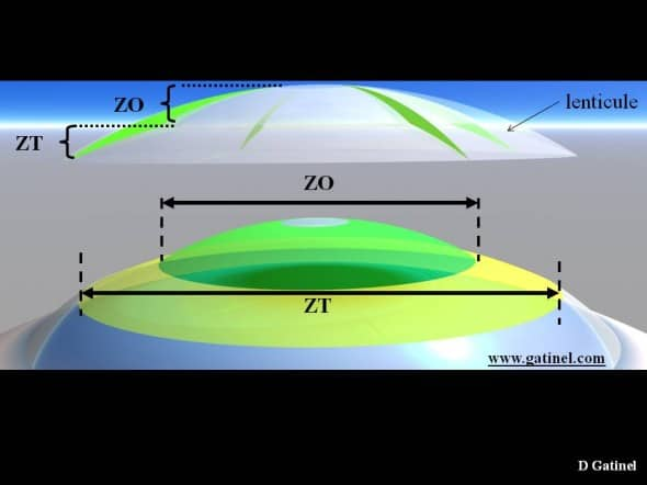 Lenticule et profil cornéen correction hypermétropie zone optique zone transition