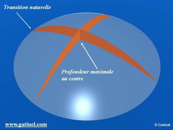 Profil d'ablation myopie correction myopie laser