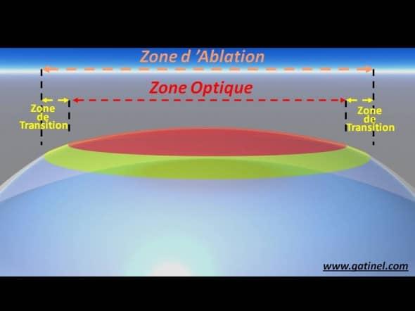 Zone d'ablation laser excimer PKR LASIK