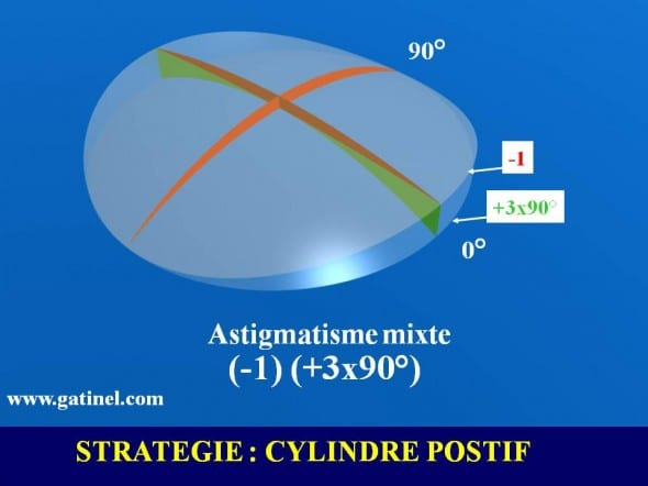 lens astigmatism joint profile of ablation